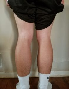 person 1 day 2 back of legs
