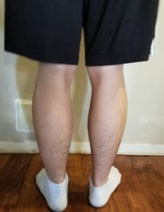 person 1 day 3 back of legs