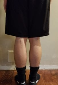 person 1 day 4 back of legs