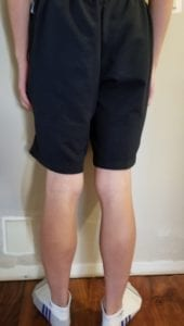 person 2 day 5 back of legs