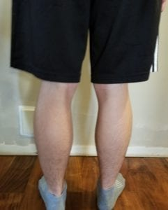 person 1 day 5 back of legs