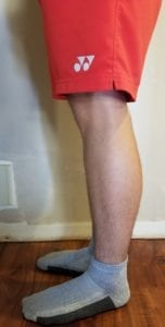 person 1 day 6 side of legs