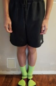 person 2 day 10 front of legs