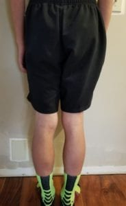person 2 day 10 back of legs