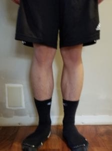 person 1 day 10 front of legs