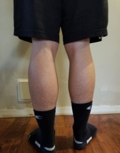 person 1 day 10 back of legs