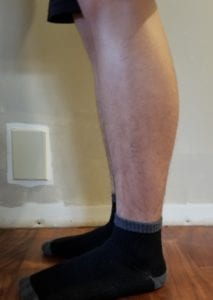 person 1 day 11 side of legs