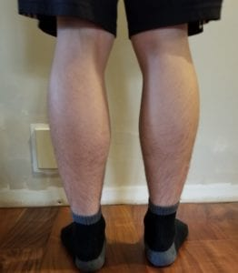 person 1 day 11 back of legs