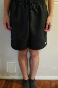 person 2 day 12 front of legs