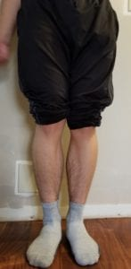 person 1 day 12 front of legs