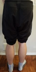 person 1 day 12 back of legs