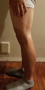 person 1 day 13 side of legs