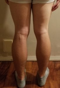 person 1 day 13 back of legs