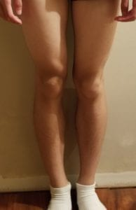 person 2 day 14 front of legs