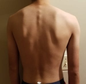 person 2 day 14 back