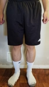 person 1 day 15 front of legs