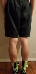person 2 day 16 back of legs