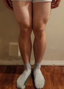 person 1 day 16 front of legs