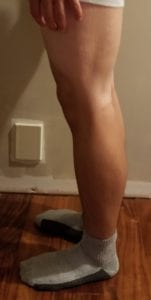 person 1 day 16 side of legs