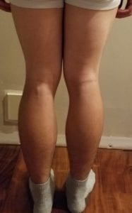 person 1 day 16 back of legs