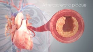 clogged heart artery