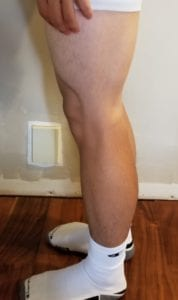 person 1 day 20 side of legs
